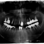 インプラント治療前X1575-000015D9-4