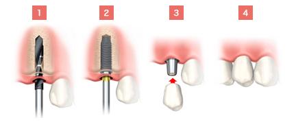 フラップレス手術