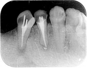 根管内に薬を充填X1527-000015CA-4